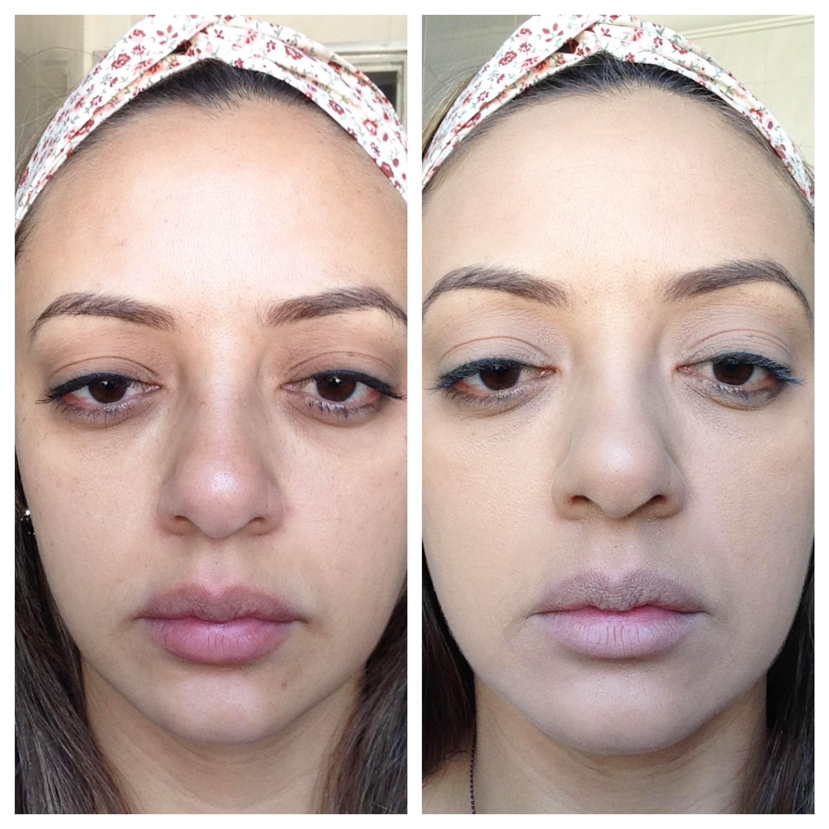 antes e depois vult 1