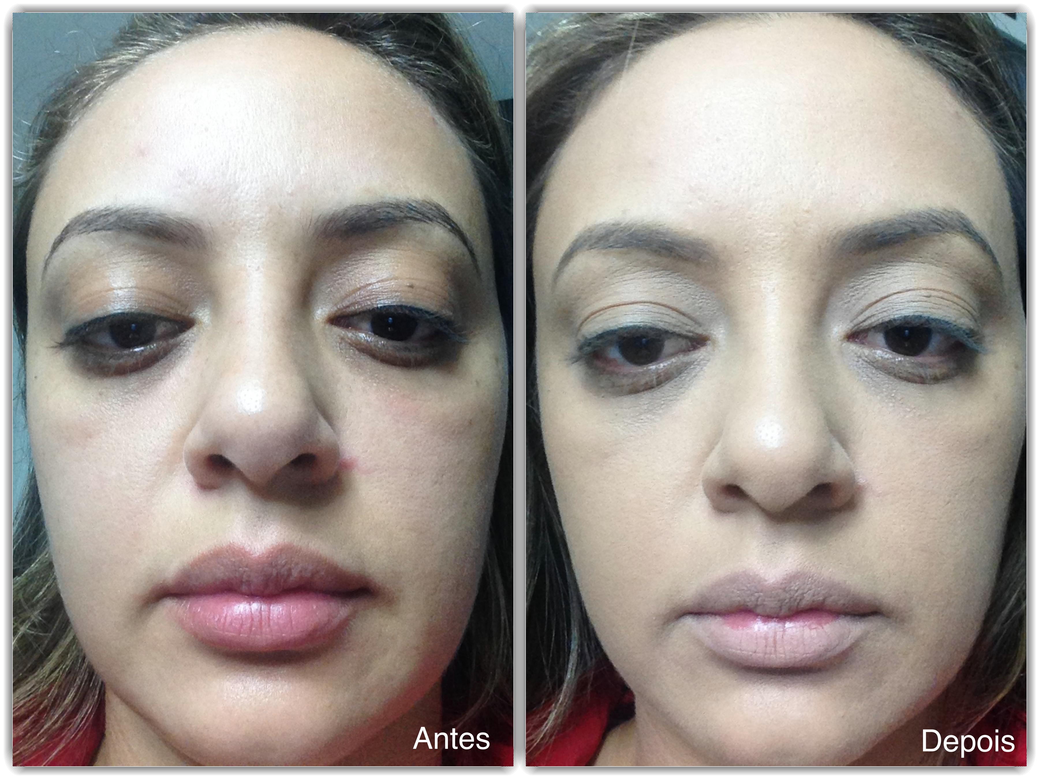 antes e depois_Fotor